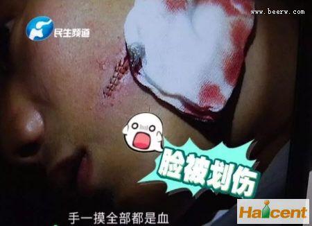 雪花威廉希尔app网站突然爆炸割伤男孩脸,消费者要求赔偿五万多